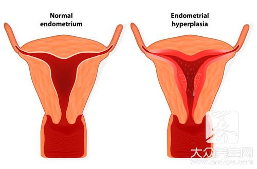 子宫全切术后遗症
