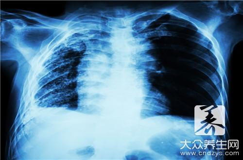 肺癌病人食谱