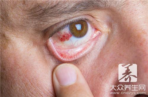 弱视怎么恢复视力